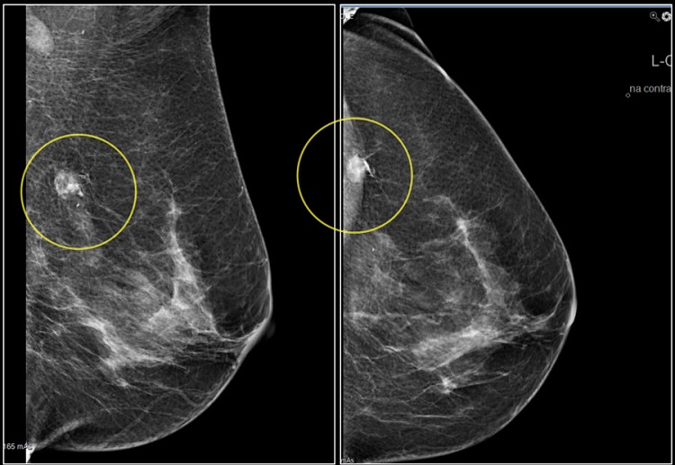 Molybdenum target mammography